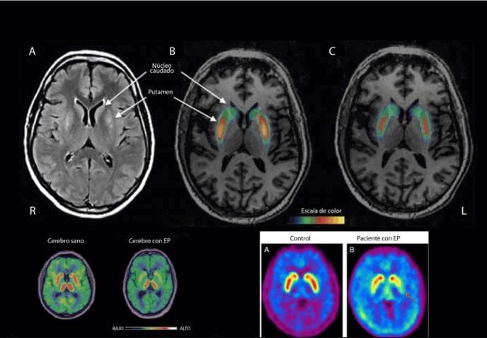 Parkinson neuroimagen