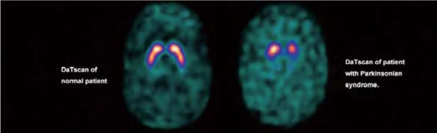 Parkinson vs cerebro normal