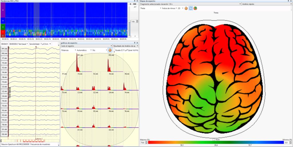 Alzheimer Cartografia