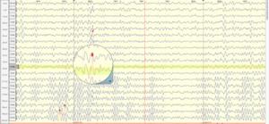 Epilepsia Cartografía