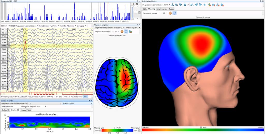 Epilépsia cartografía