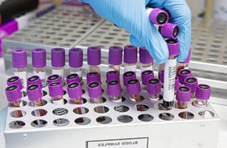 Biomarcadores epigenetica